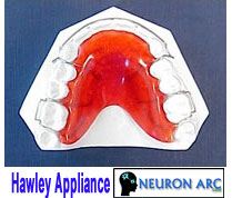 The Hawley Appliance: Advantages, Disadvantages, Indications, Components, Fabrication, Adjustments