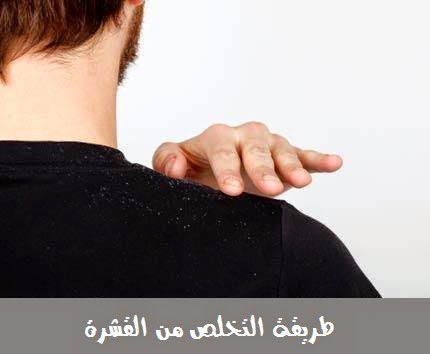 طريقة التخلص من القشرة (قشرة الرأس)