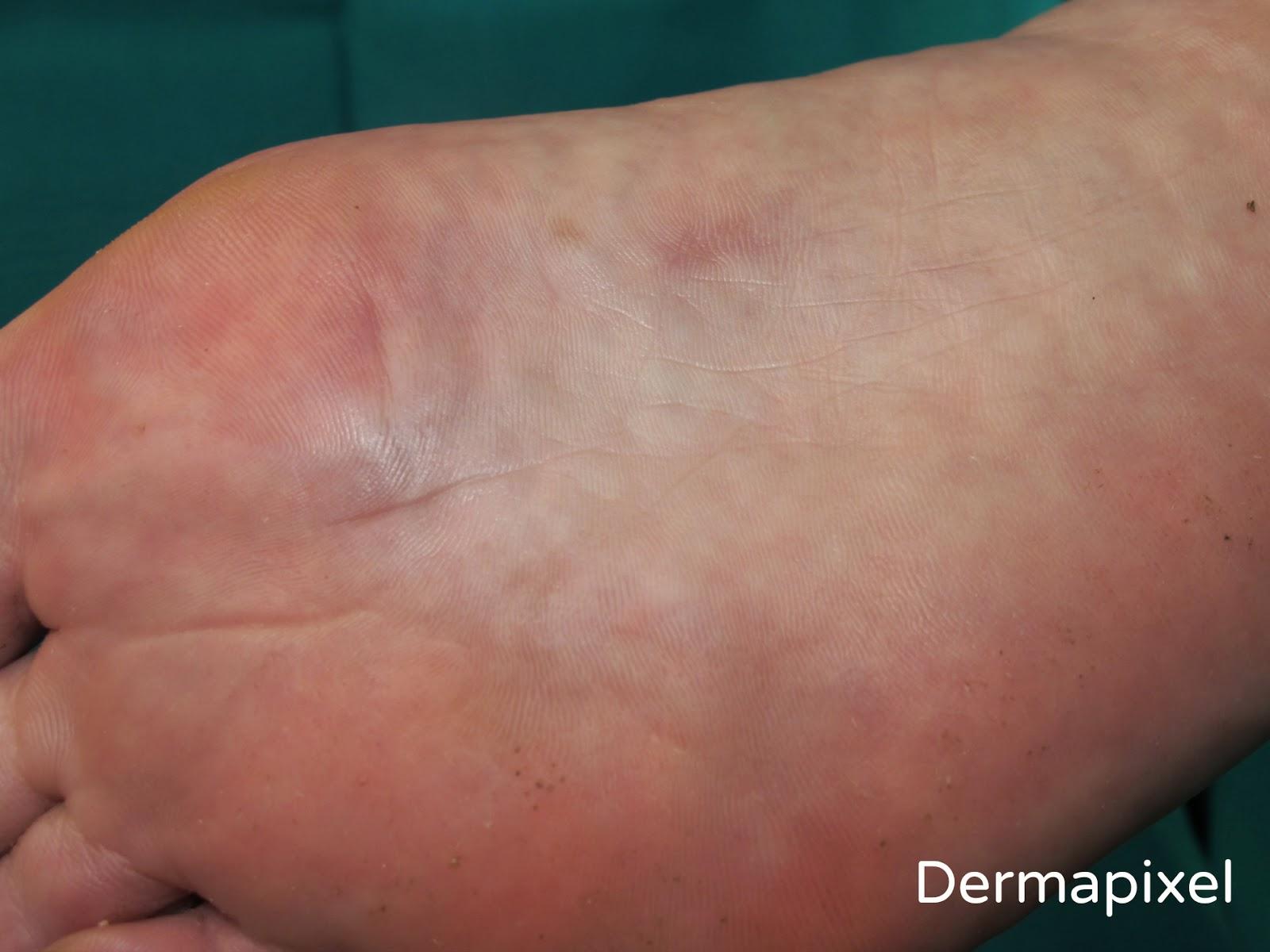 El tratamiento de las manchas de pigmento sobre la persona y las manos