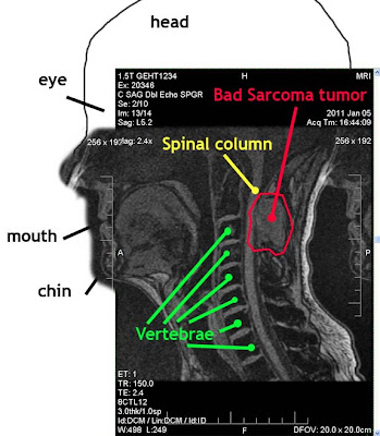 MRI of sarcoma tumor near spine and cervical vertebrae C1 C2 in neck by Selep Imaging