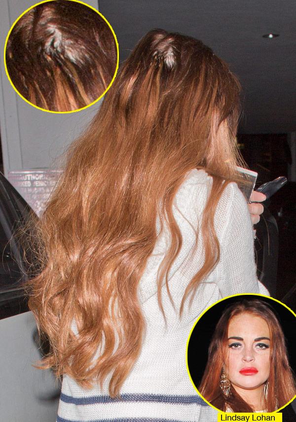 Celebrity Hair Loss Is Lindsay Lohan Losing Her Hair