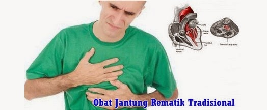 http://obatgangguanjantung.blogspot.com/2015/05/obat-jantung-rematik.html