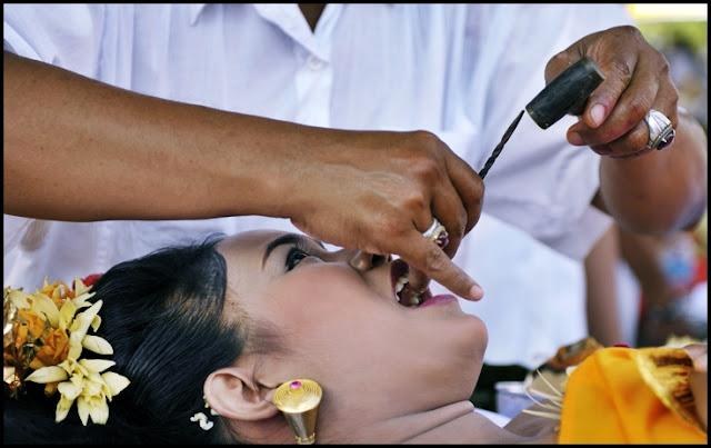 Metatah Potong Gigi Untuk Menghilangkan Sifat Buruk Cerita Wisata Aunamazaya