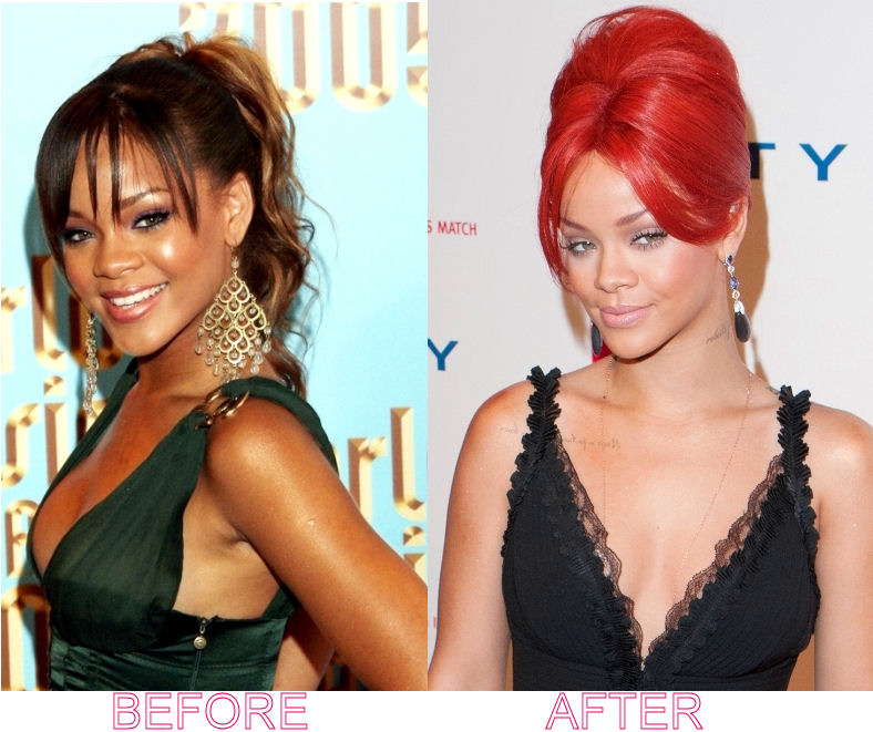 rihanna-nose-job-before-and-after jpgRihanna Before And After Nose Job