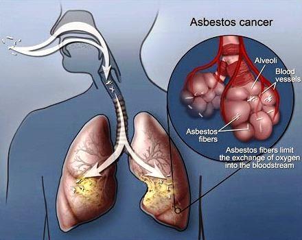 jenis kanker karena asbes