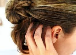 Home Remedies For Dry Scalp And Dandruff
