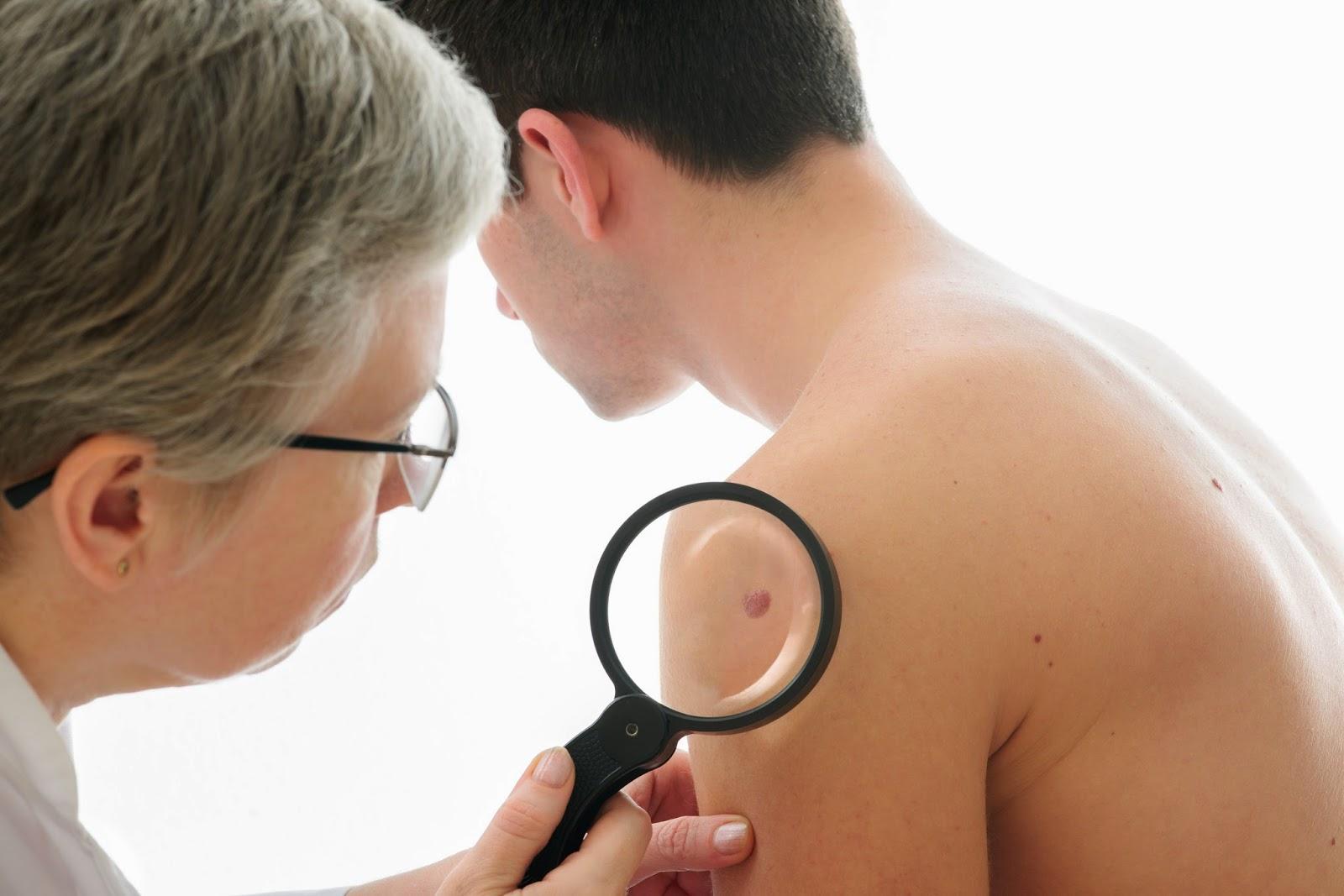 Myriad myPath Melanoma improves the diagnosis and treatment  plans of melanoma.