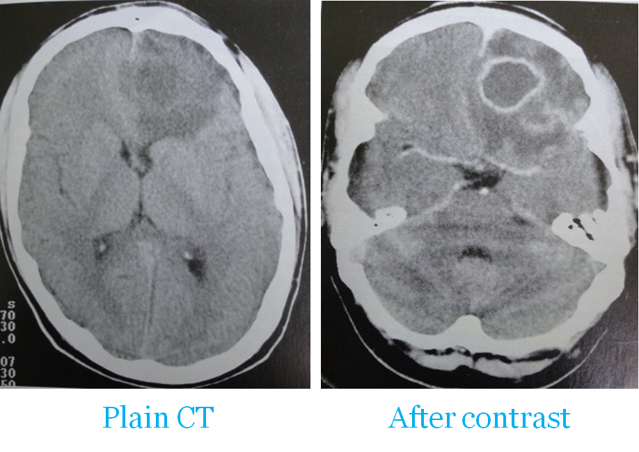 Contusions develop in surface grey matter tapering into white matter -2.bp.blogspot.com