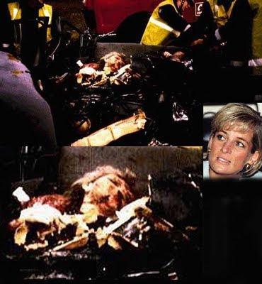 Gambar Kematian Puteri Diana Selepas Kemalangan