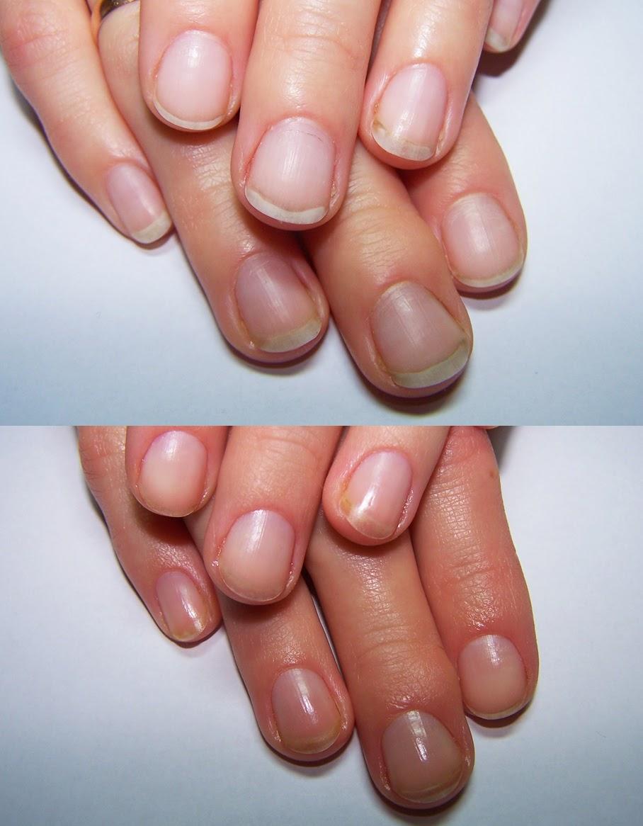 Как маникюром сузить широкие ногти