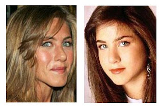 Jennifer Aniston Nose Jobs