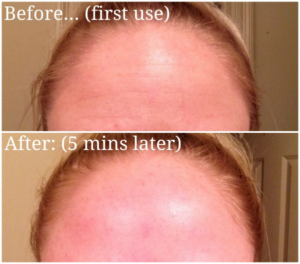 rodan and fields real results