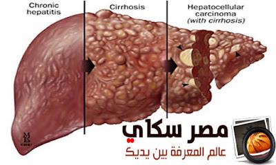 ماذا تعرف عن التهابات الكبد الفيروسية  Hepatitis