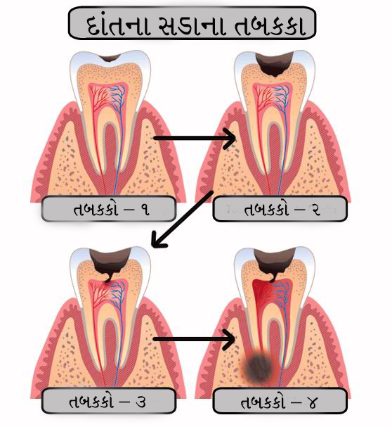 stages of dental caries shown in gujarati language