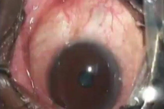 Removing A 19 Centimeters Long Worm From Mans Eye