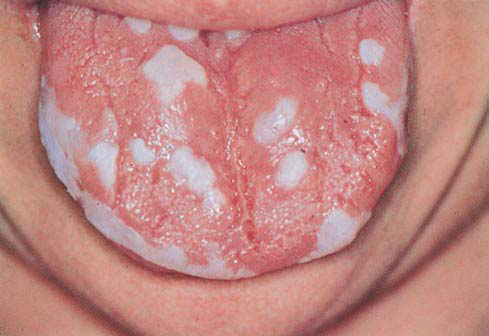 chronic mucocutaneous candidiasis