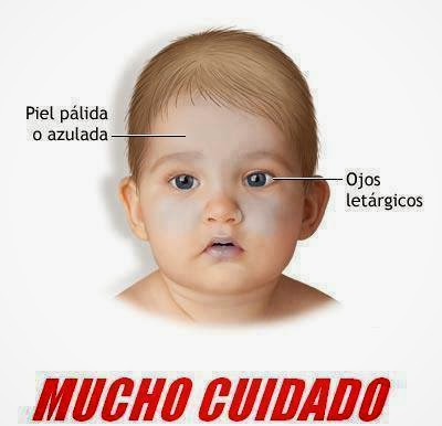 Sindrome del bebé sacudido
