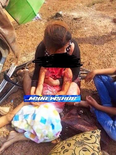 Gambar Ibu Dakap Jasad Anak Putus Kepala Bukan Di Kedah