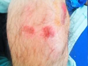 Ferimentos causados pelo pai na perna do filho de 16 anos. (Foto: Reprodução/TV Morena)