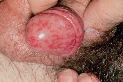 Los hoyuelos sobre las uñas el tratamiento