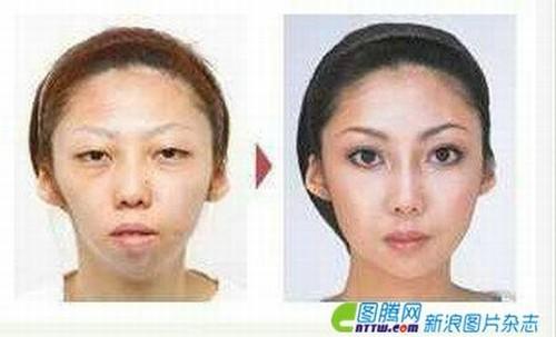 10 Hasil Operasi Plastik Terbaik di China !