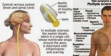 Mencegah Multiple Sclerosis dengan Minum Kopi