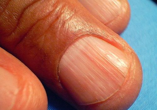 Почему на ногтях полоски вдоль ногтя