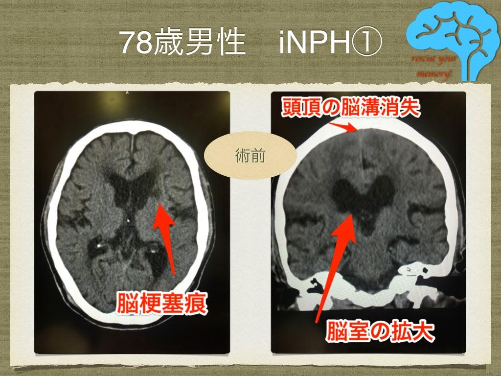 78歳男性 特発性正常圧水頭症の画像①
