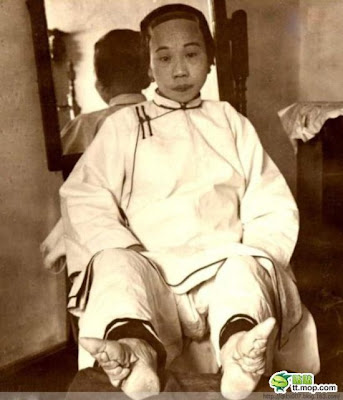 Chinese Women with Deformed Feet Seen On  www.coolpicturegallery.us