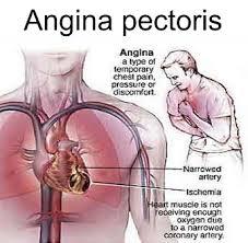 Pengobatan Tradisional Angina Pectoris (Angin Duduk)