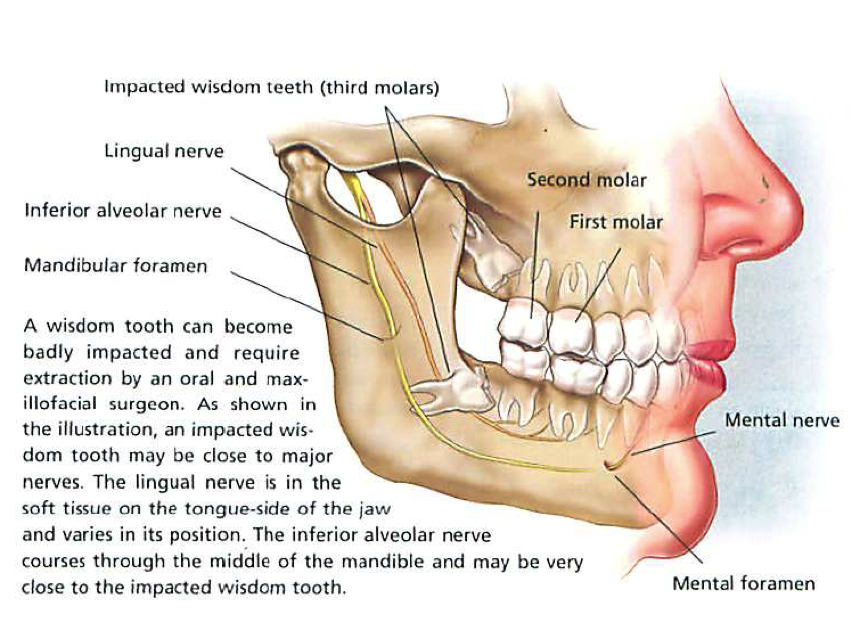 Cost of Wisdom Teeth Removal in Different Range