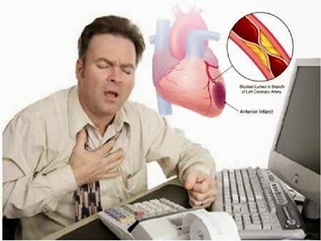 Penyebab Penyakit Jantung Koroner