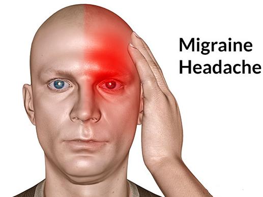 Migraine Kaaran or Lakshan
