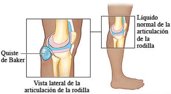 киста бейкера коленного сустава лечение чистотелом