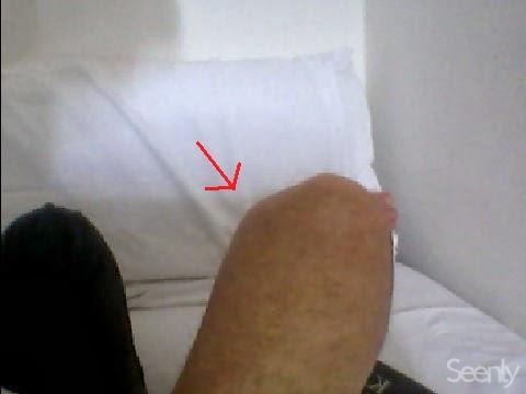 Gambe senza fotografia varicosity