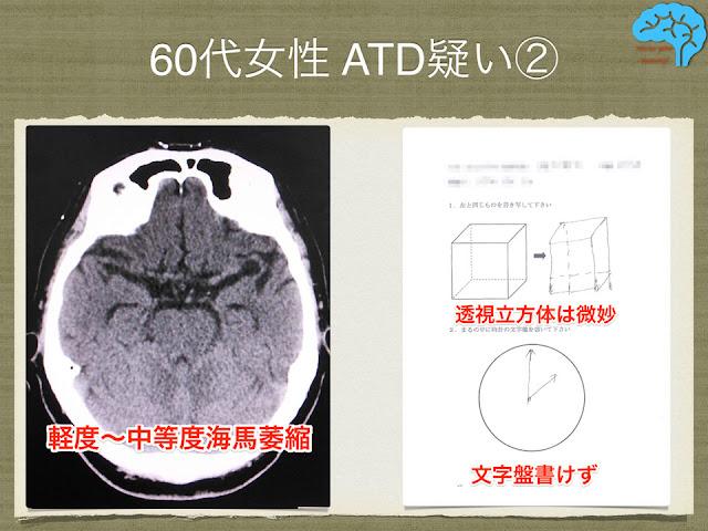 頭部CTで海馬の萎縮あり
