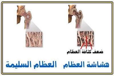 هشاشة العظام الأسباب والأعراض والعلاج