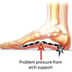 Physiotherapy and Plantar Fasciitis exercise ~ akufisio.blogspot