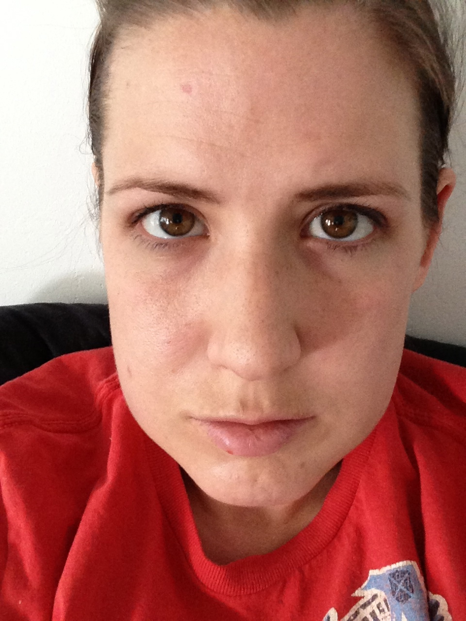 how to help swelling from wisdom teeth removal