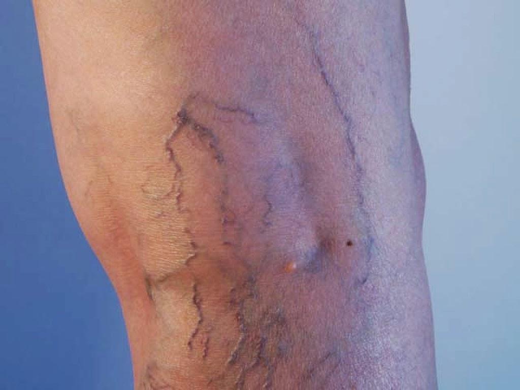 varices benen