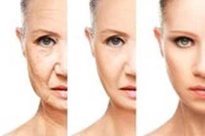 Gambar pori-pori wajah membengkak dan lebar