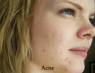Acne Mix cinnamon or sandal wood with fresh lime juice and apply it and you'll get rid of acne within 2-4 weeks