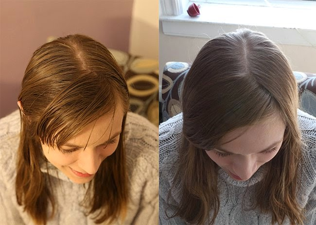 The 'No Shampoo Experiment,' Six Months Later