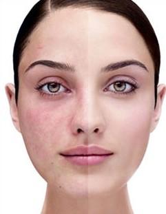 Le malattie su una faccia umana notano