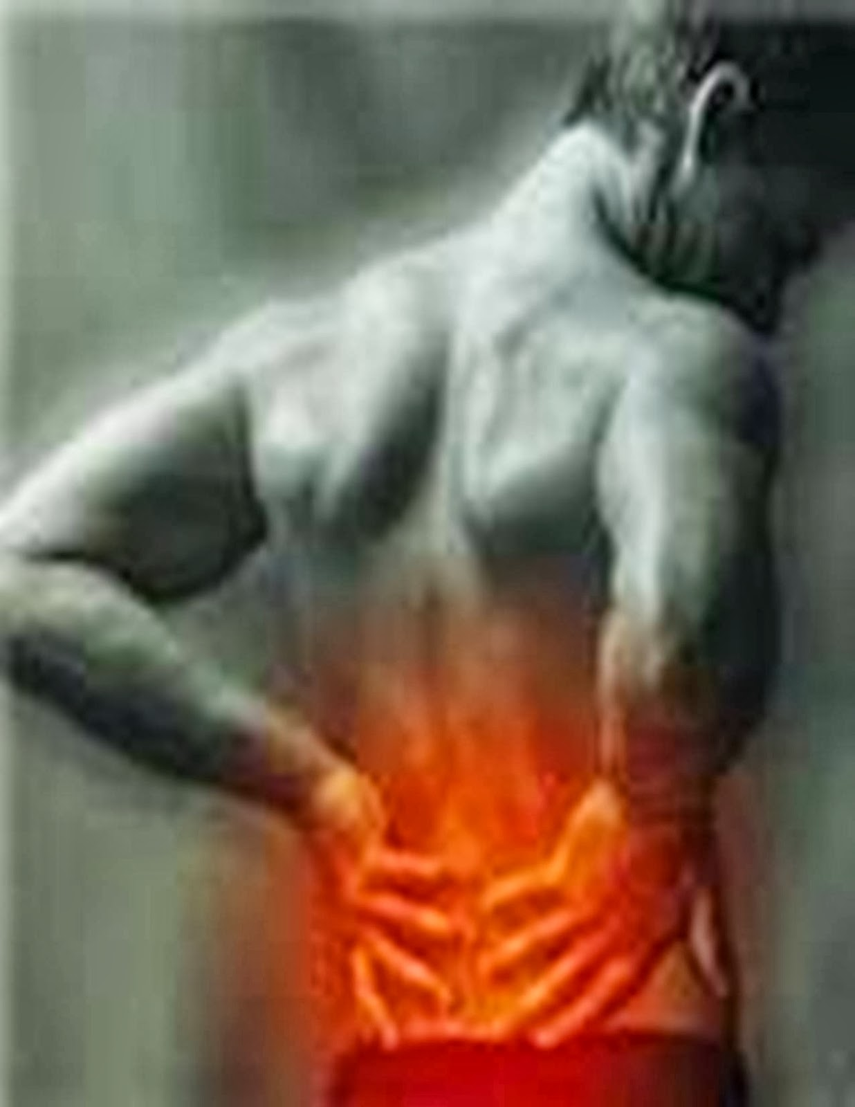 LAPORAN PENDAHULUAN NYERI PUNGGUNG BAWAH (LOW BACK PAIN / LBP)