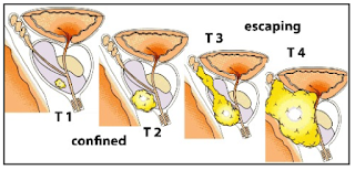 Showing Stages Of Prostate Cancer