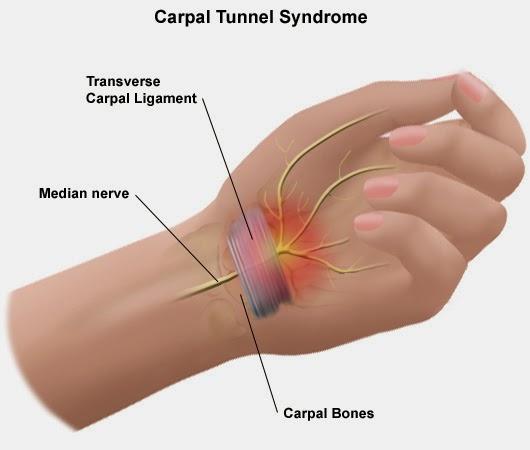 Tunel Carpiano Sintomas