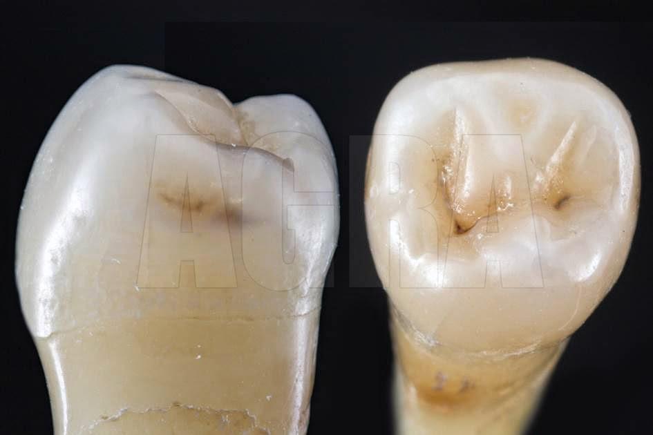 Anatomia Pré-Molares | Sobre Dentística