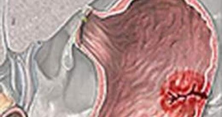 como curar la gastritis crónica