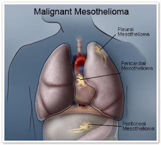 malignant-mesothelioma